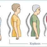natural remedies for osteoporosis