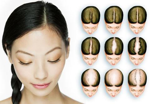 hair loss phases