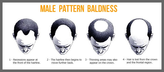 regrow natural hair