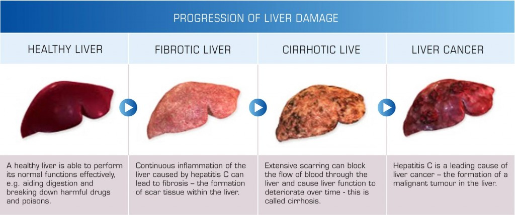 How to detox your liver naturally liver disease ccuart Image collections