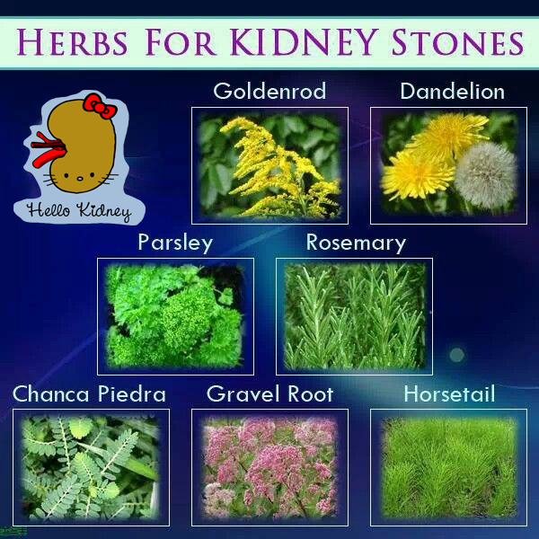 kidney stone removal