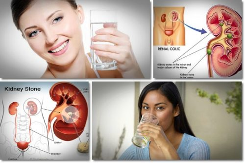 Kidney Stones Treatment at Home