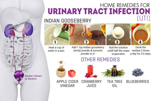 UTI Home Remedies