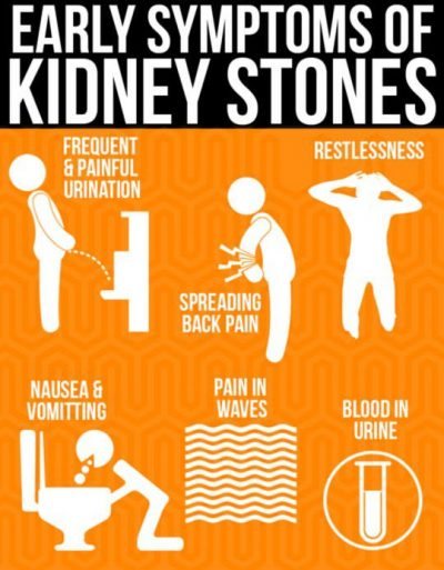 early symptoms of kidney stones