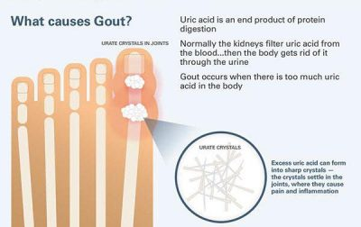 what causes gout flare ups