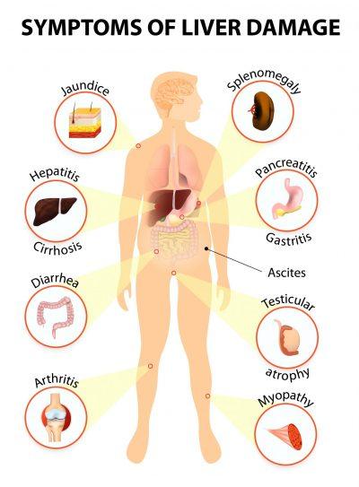 Liver Damage Symptoms