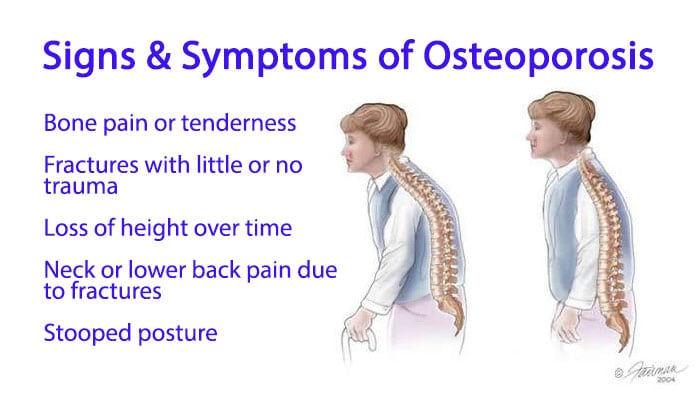 signs of osteoporosis