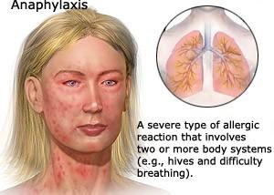 allergy attack