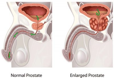 enlarged prostate symptoms