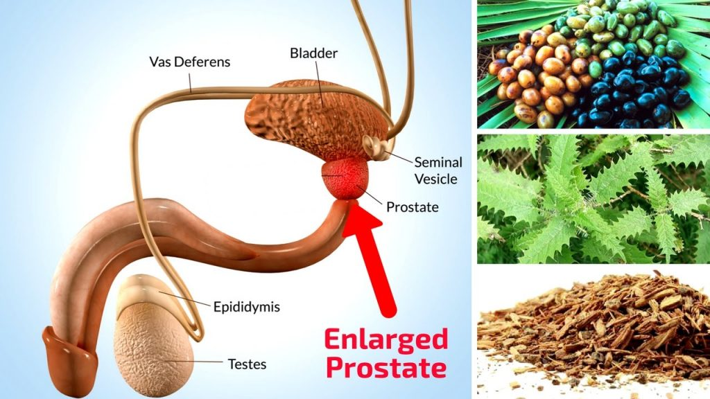 what does the prostate do