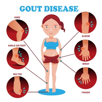 signs and symptoms for gout