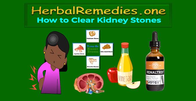 how to release kidney stones